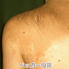 ベッカー母斑の写真