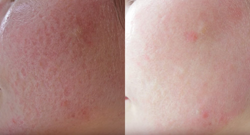 CO2REの治療前と治療後の比較写真