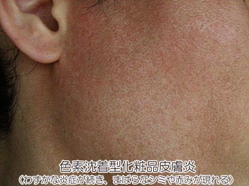 色素沈着型化粧品皮膚炎の画像