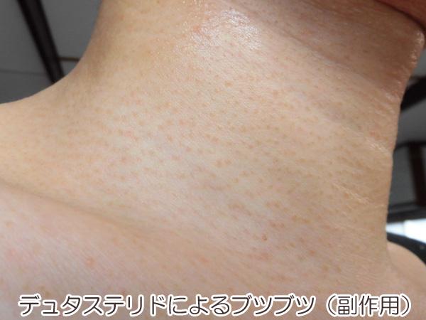 デュタステリド(ザガーロ)による副作用、ブツブツした湿疹の画像