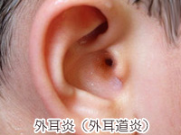 外耳炎(外耳道炎)の画像