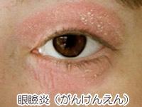 眼瞼炎(がんけんえん)の画像