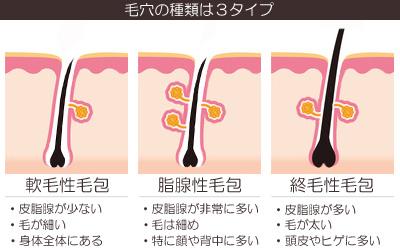 毛穴・毛包の種類(軟毛性毛包、脂腺性毛包、終毛性毛包)の画像