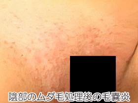 陰部のムダ毛処理後の毛嚢炎の画像