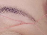 糸脱毛の写真