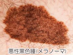 メラノーマ(悪性黒色腫)の画像