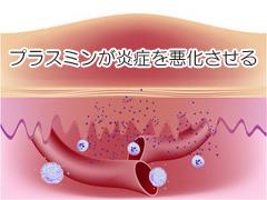 プラスミンが炎症を悪化させる写真