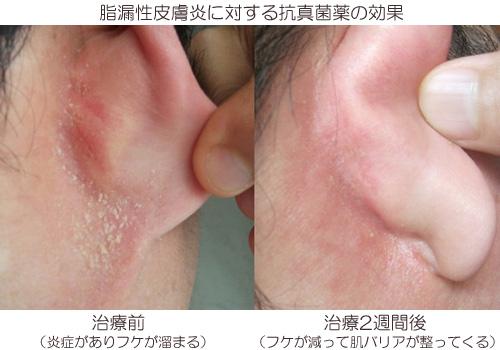 脂漏性皮膚炎の対して抗真菌薬を使った効果