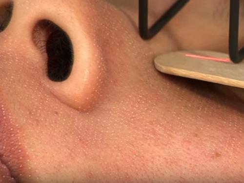 スマートサイドドットで皮膚に穴をあけていく