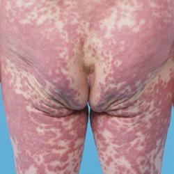 アレルギー性の薬疹の画像