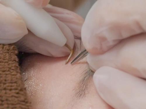 絶縁針脱毛の治療風景
