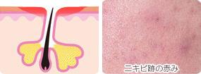 ニキビ跡の赤み写真