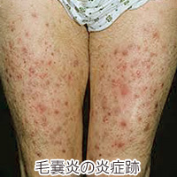 毛嚢炎の炎症跡の画像