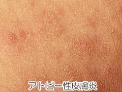 アトピー性皮膚炎の画像
