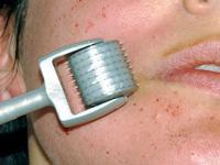 ダーマローラーの治療写真