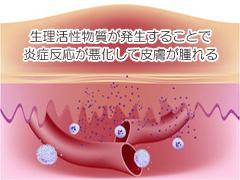 生理活性物質による炎症反応の画像