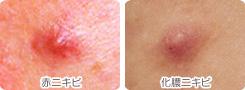 炎症性の赤ニキビや化膿ニキビ