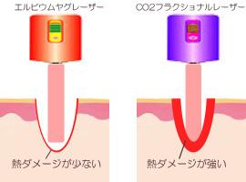 エルビウムヤグレーザーとCO2レーザーの比較