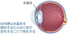 紫外線と白内障