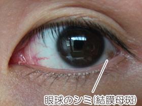目(眼球)のシミ、結膜母斑の画像