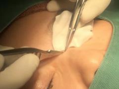 稗粒腫の治療の画像