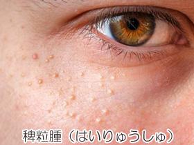 稗粒腫(はいりゅうしゅ)の画像