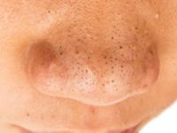 鼻の毛穴黒ずみの画像