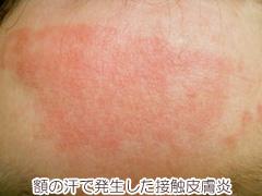 額の接触皮膚炎の画像