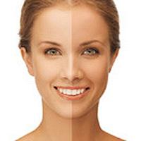 日焼け前と日焼け後の肌の画像