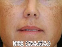 肝斑の写真