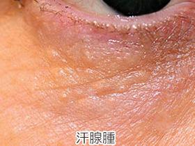 汗腺腫の画像