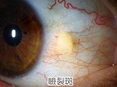 瞼裂斑の画像