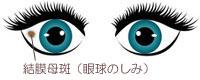 目・眼球のしみの画像