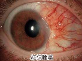結膜腫瘍の画像