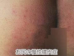 お尻の慢性膿皮症の画像