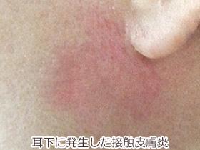 耳の下の接触皮膚炎の画像