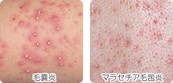 毛嚢炎とマラセチア毛包炎が違う画像