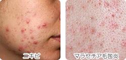 ニキビとマラセチア毛包炎の違い