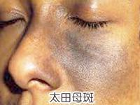 太田母斑の画像