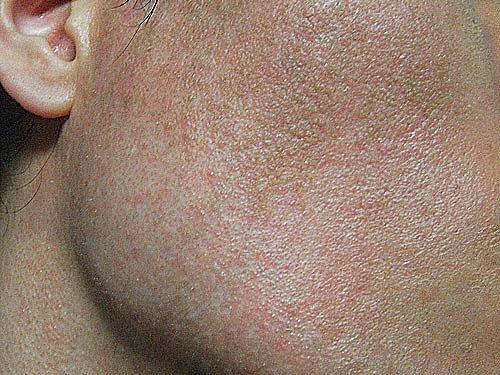 ピーリングを10年間続けた肌の画像