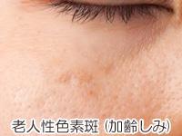 加齢によるシミ(老人性色素斑)の画像