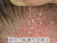 頭皮の脂漏性皮膚炎