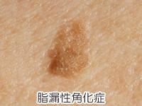 脂漏性角化症の画像