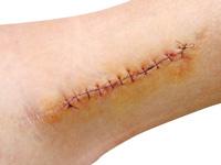 皮膚切除によるタトゥー治療の画像
