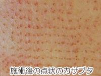 フラクショナルレーザー後の点状のカサブタの画像
