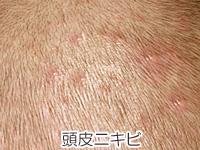 頭皮ニキビの画像