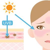 紫外線UVB