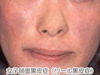 女子顔面黒皮症(リール黒皮症)の画像