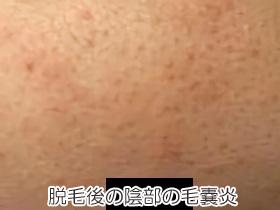 ブラジリアンワックス脱毛後の陰部の毛嚢炎の画像