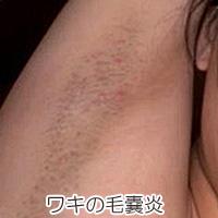 ワキの毛嚢炎